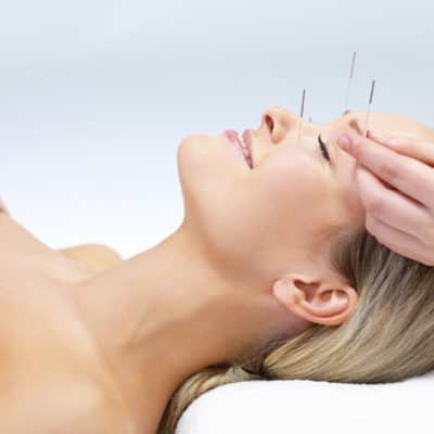 Fine Opportunities With The Best Acupuncture Techniques