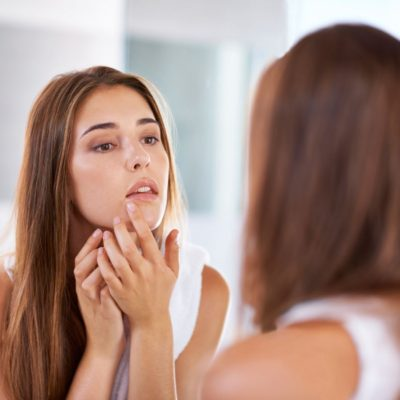 Top Tips For Combatting Acne