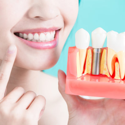 How To Choose The Best Dentist As Per Your Choice?