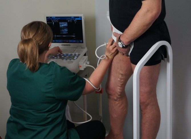 Insight Into The Varicose Veins Problem