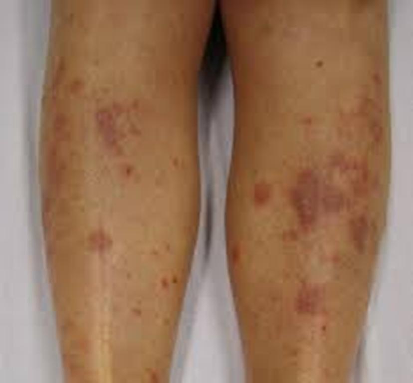 Eczema twitter search