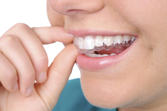 The Benefits Of Using Invisalign Braces To Get A Perfect Smile