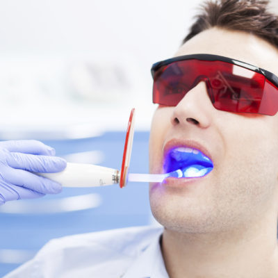 Laser Teeth Whitening- Most Effective And Now Takes Just 60 Minutes!