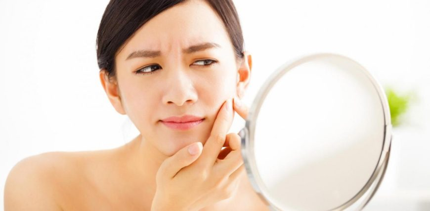 Skin Acne Symptoms, Causes And Acne Treatment In London