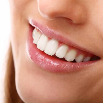 Composite Artistry – Here Are The Things To Expect From Essex Dentists