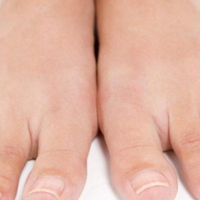 Ingrown Toenail Prevention