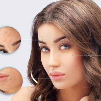 Cost Effective Methods To Cure Skin Diseases At Your Home