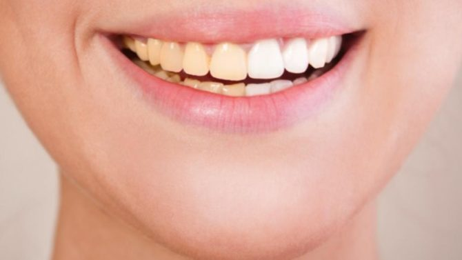 Are You Embarrassed Of Pale Yellow Teeth?